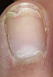 vitamin information health peeling fingernails causes treatment pictures 2018