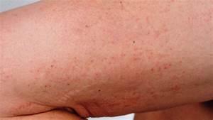 Dermatitis Herpetiformis: Causes, Symptoms, and Diagnosis
