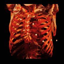 organi gabbia toracica gabbia toracica
