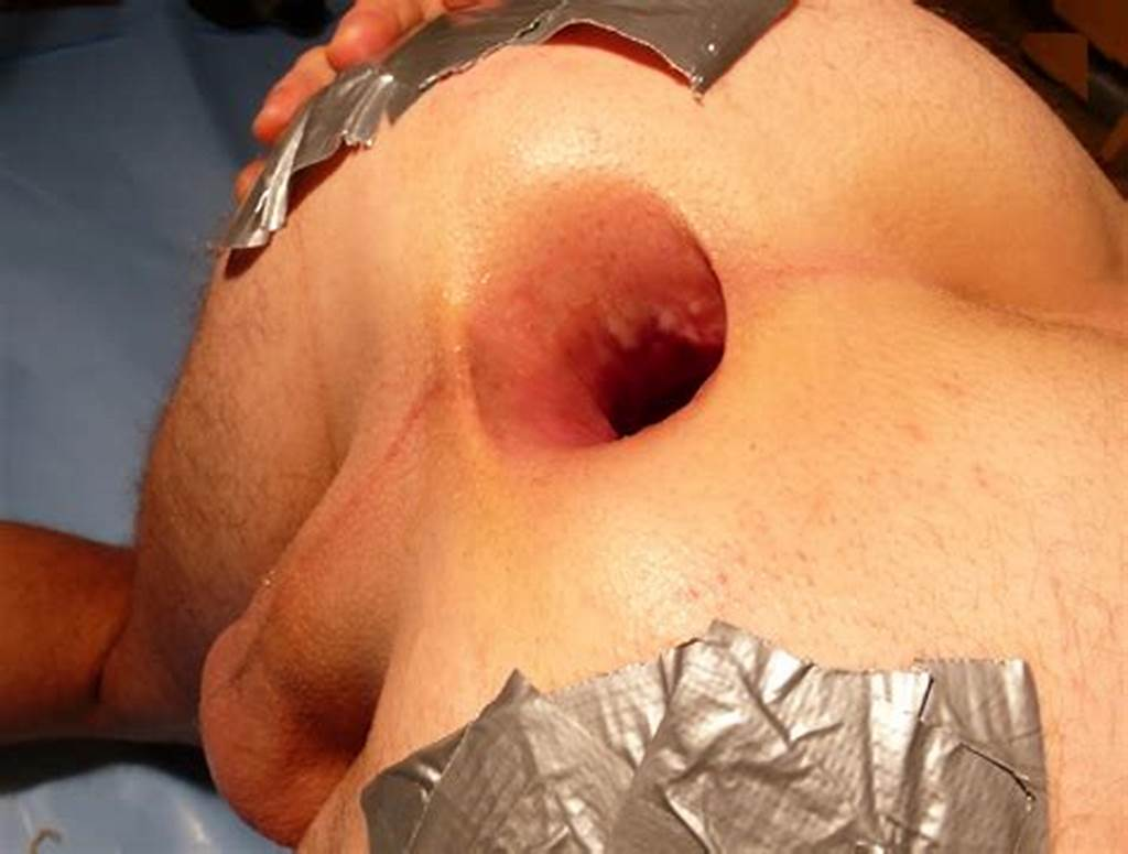 #Wide #Open #Anus #Hole