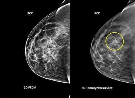 3-D mammogram scans may find more breast cancer – Twin Cities