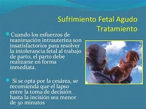 sufrimiento fetal agudo