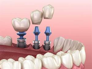 A Guide To Dental Implants
