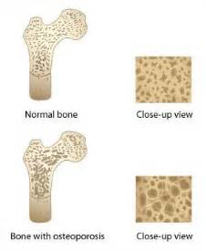 In osteoporosis, the cortex becomes thinner and more brittle, while ... Osteoporosis