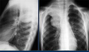 The Radiology Assistant : Pediatric Chest CT 1 - Nonvascular Mediastinal Masses Ganglioneuroblastoma