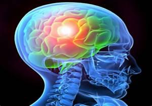 Traumatic Brain Injury Increases Dementia Risk