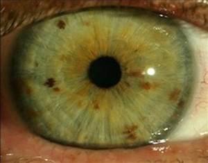 What The Mean Iridology Green Eyes Iriscope Iridology