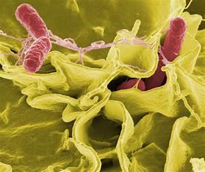 Photo: Wikipedi... Salmonella