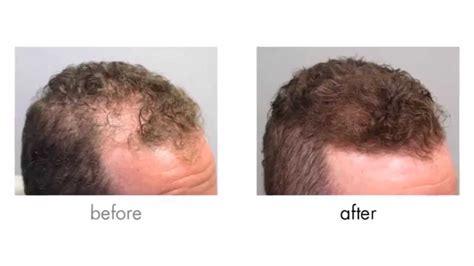Hair Loss (alopecia) Treatment