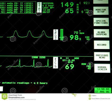 Heart Monitor Royalty Free Stock Photo - Image: 1160875