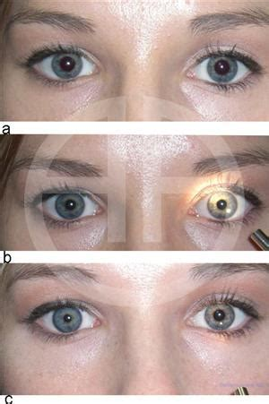 pharmacologic miosis american academy  ophthalmology