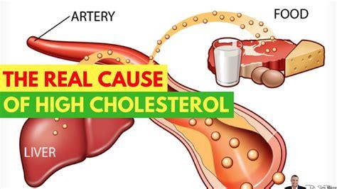 dr reveals  real   high cholesterol  dr sam