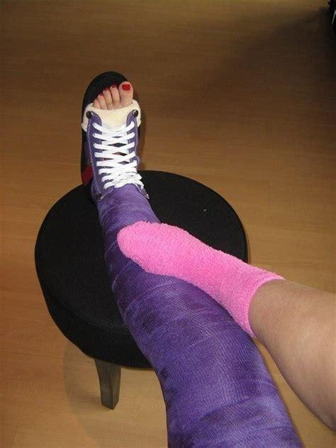 Leg Castllc Leg Cast Pinterest