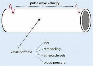 9 Pulse Wave Velocity Is Related To The Stiffness Of The