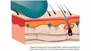 About Medical Microneedling