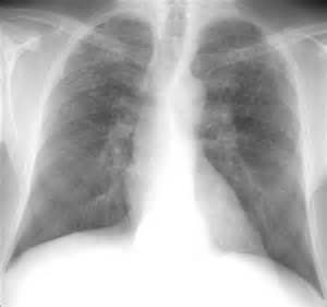 ... Remedies Treat Interstitial Lung Disease :: The JB Bardot Archives Interstitial lung disease