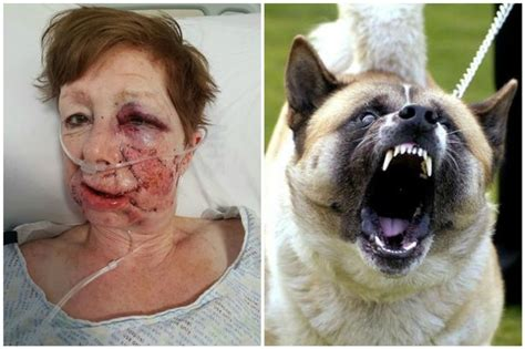 police seize akita dog  tore  part  pensioners