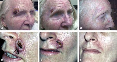 intralesional methotrexate treatment  keratoacanthoma