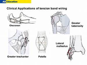 Tension Band Wiring