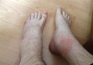 Какую применить мазь артроз коленного сустава