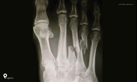 pertanyaan tentang kelainan kaki  rs mitra keluarga