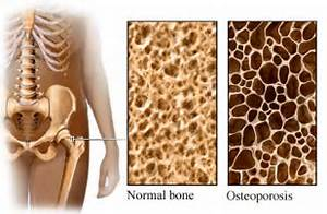 Ah, caffeine, the chemical that drives America. Without it, how would ...  Osteoporosis Bone Health