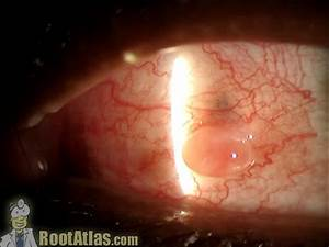 Pyogenic granuloma on the conjunctiva (Video) - TimRoot.com