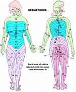 Dermatomes     mycereb...Dermatomes Netter