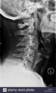 neck x-ray of cervical vertebrae, lateral view, 40 year ...