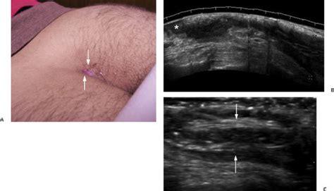 pilonidal cyst ultrasound skin imaging radiology key
