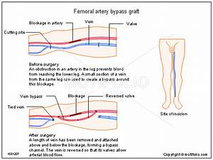 Femoral Artery Bypass Graft Illustrations