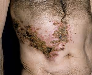 Post Herpetic Neuralgia Pain - hnczcyw.com  Chickenpox Integrative medicine