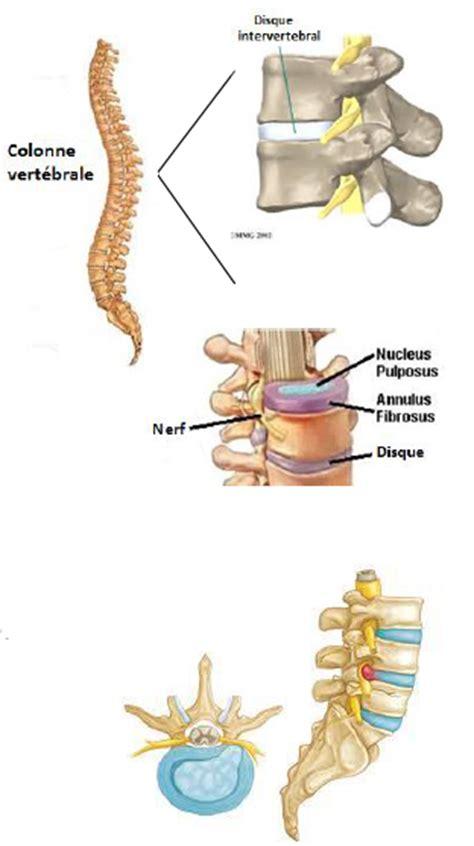 pincement discal l5 s1 arret travail hernie discale traitement physioth 233 rapie forcemedic
