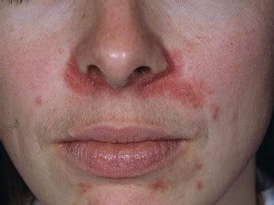 dry skin  mouth  nose   remedies