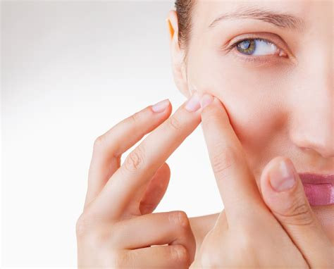 Are You Extracting Acne The Right Way California Skin