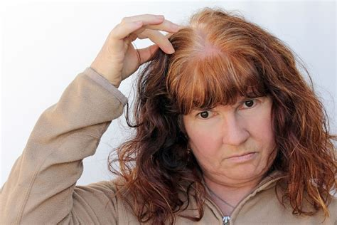 What Vitamins are Good for Hair Loss During Menopause ...