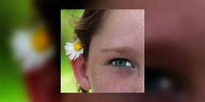 Comment Reconnaitre Un Hibiscus D Intérieur Ou D Extérieur : le chalazion de l enfant b nin mais r cidivant e sant ~ Dallasstarsshop.com Idées de Décoration