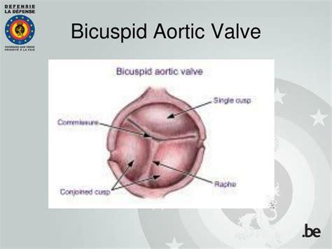 PPT - Aortic Bicuspid Valve in Flight Crew: Case-Reports