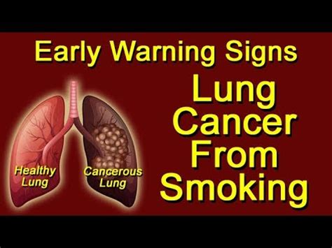 Lung Cancer From Smoking  Early Warning Signs  Youtube. Princess Decals. Glass Window Murals. Car Wash Decals. Clay Design Murals. Elevation Murals. Rc 390 Stickers. Diff Signs Of Stroke. Soccer Field Banners