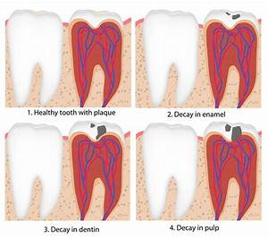How Fast Can A Tooth Decay   U2013 Ebenezer Dental Blog