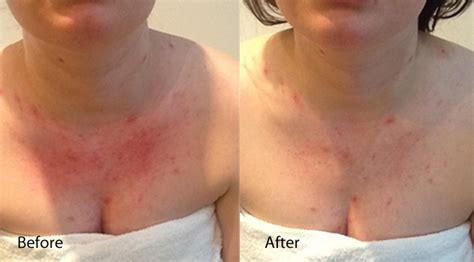 Led Light Therapy For Acne Vulgaris
