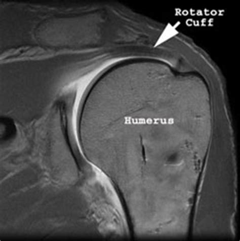 Rotator Cuff Repair in Beverly Hills and Los Angeles