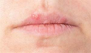 Lèvre Enflée Bouton : bouton de fi vre causes sympt mes traitements passionsant be ~ Medecine-chirurgie-esthetiques.com Avis de Voitures