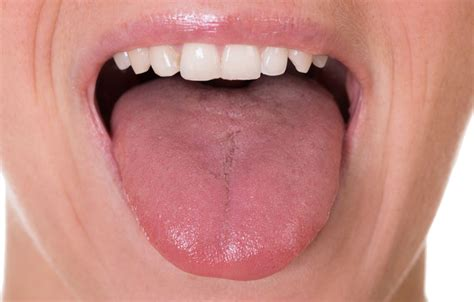Yellow Tongue Meaning Causes Cancer Furry Tongue And