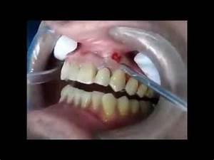 Percer Un Bouton : incision et drainage d 39 un abc s dentaire mes sensibles ~ Dallasstarsshop.com Idées de Décoration