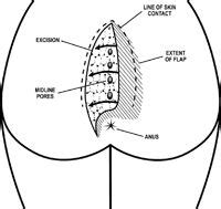 pilonidal cyst diagram location of translation location free engine image for