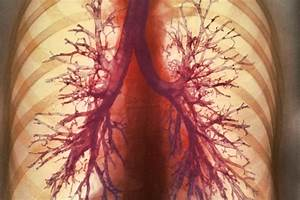 Artificial Lungs In A Backpack May Free People With Lung