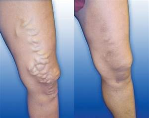 Cure varicose veins without surgery, in a natural way ...