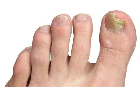 fingernail infection  symptoms pictures