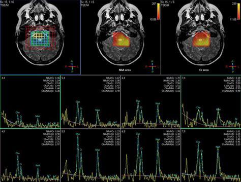 exames medicina nuclear